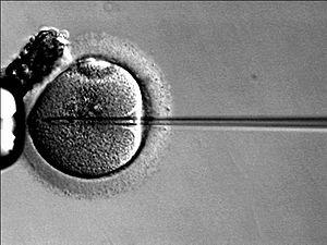 Según un estudio, los niños concebidos por fertilización in vitro pueden tener predisposición genética a ciertas enfermedades