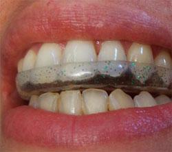 ¿Por qué rechinamos los dientes?